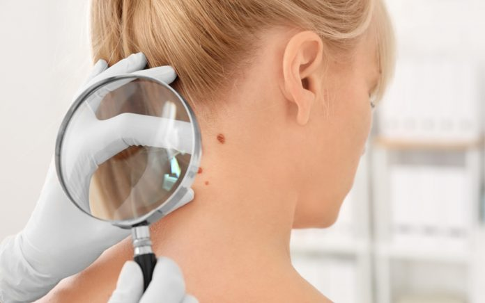 How Doctors are Diagnosing Skin Cancer During Lockdown
