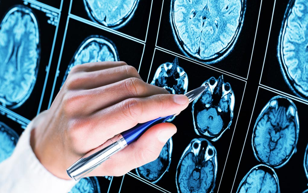 5 Startling Facts About Epilepsy